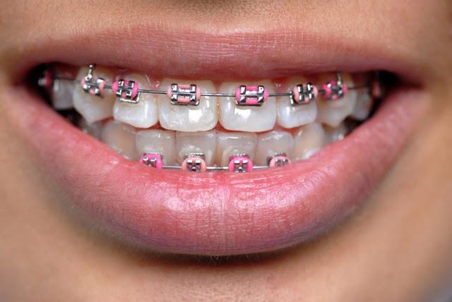 Właściwa pielęgnacja zębów podczas noszenia aparatu ortodontycznego – # 1 – Zanim założysz aparat!